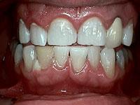 Sartell MN Dentist Smile Gallery